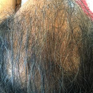 RJ_hair_ptA6months
