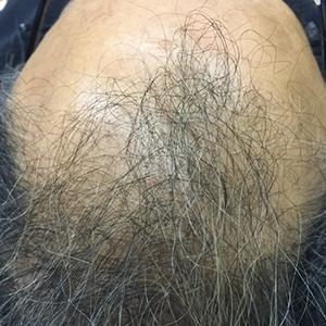 RJ_hair_ptAbaseline